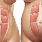 3 Steps To Healing Your Diastasis Recti