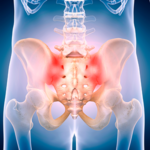 How to Train Clients with SI Joint Pain in Pregnancy