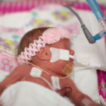 Once A Preemie, Always A Preemie? Not Necessarily